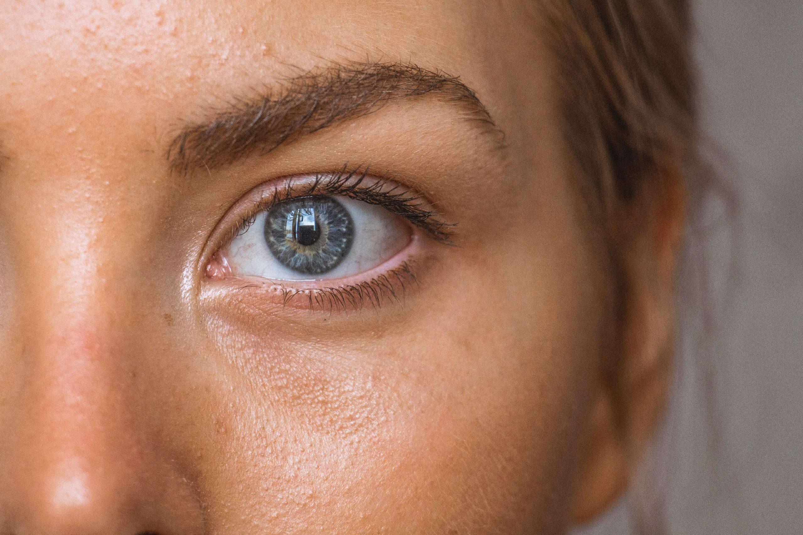 Symtom, solskadade ögon
